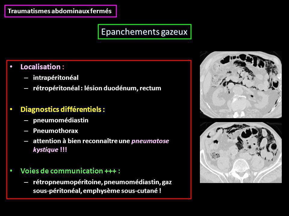 Localisation : – intrapéritonéal – rétropéritonéal : lésion duodénum, rectum Diagnostics différentiels : – pneumomédiastin – Pneumothorax – attention à bien reconnaître une pneumatose kystique !!.