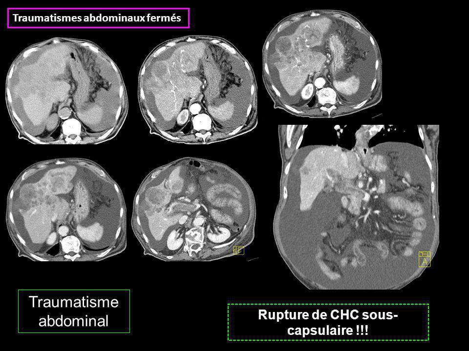 Rupture de CHC sous- capsulaire !!! Traumatisme abdominal Traumatismes abdominaux fermés
