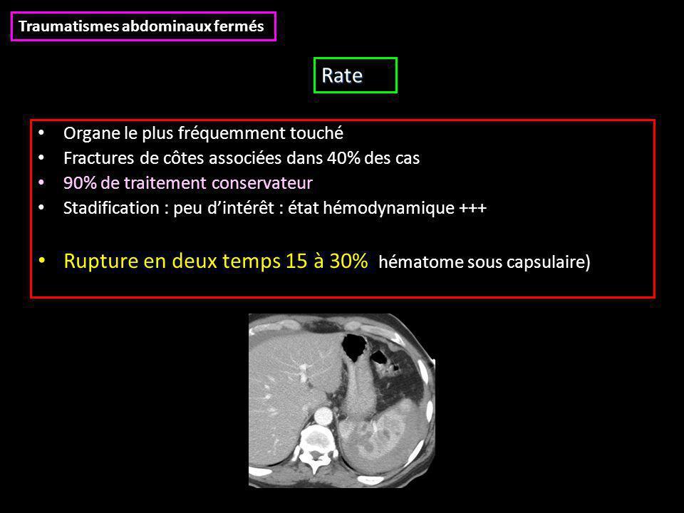 Organe le plus fréquemment touché Fractures de côtes associées dans 40% des cas 90% de traitement conservateur Stadification : peu d'intérêt : état hémodynamique +++ Rupture en deux temps 15 à 30% (hématome sous capsulaire) Traumatismes abdominaux fermés Rate