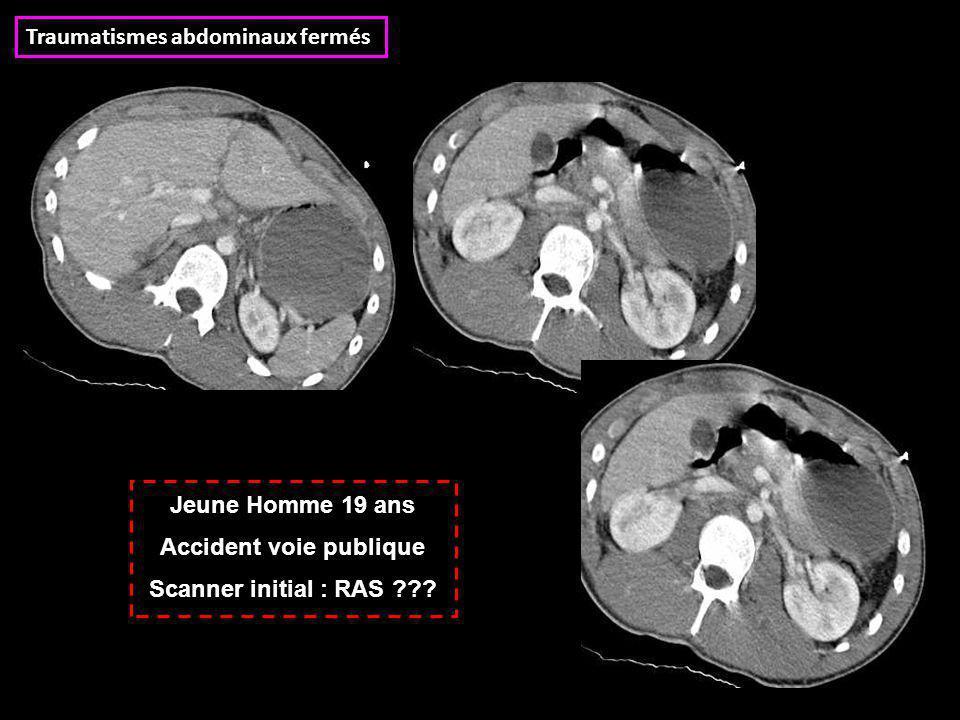 Jeune Homme 19 ans Accident voie publique Scanner initial : RAS ??? Traumatismes abdominaux fermés