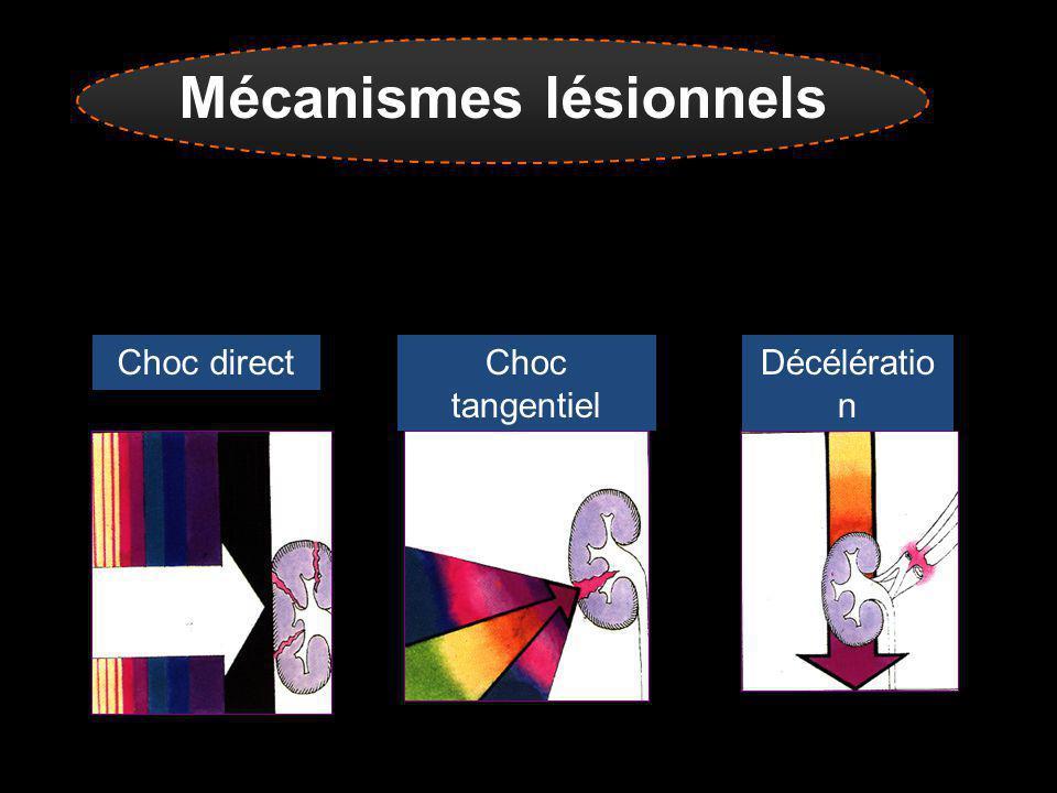 Mécanismes lésionnels Rein : organe dense et lourd, capsule friable Choc direct Choc tangentiel Décélératio n