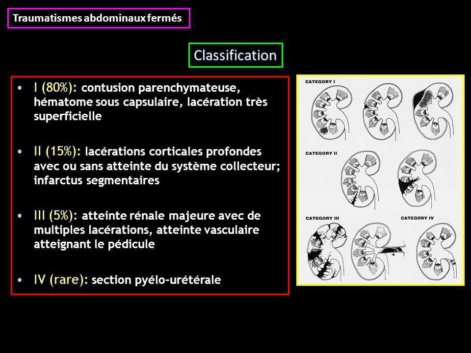 I (80%): contusion parenchymateuse, hématome sous capsulaire, lacération très superficielle II (15%): lacérations corticales profondes avec ou sans atteinte du système collecteur; infarctus segmentaires III (5%): atteinte rénale majeure avec de multiples lacérations, atteinte vasculaire atteignant le pédicule IV (rare): section pyélo-urétérale Traumatismes abdominaux fermés Classification