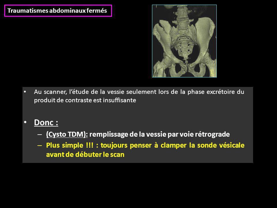 Au scanner, l'étude de la vessie seulement lors de la phase excrétoire du produit de contraste est insuffisante Donc : – (Cysto TDM): remplissage de l
