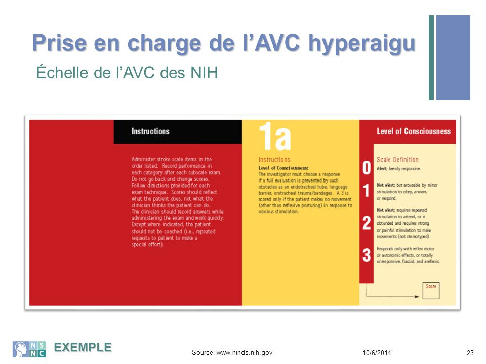 Prise en charge de l'AVC hyperaigu Échelle d'AVC des NIH 10/6/201424 Source: www.ninds.nih.gov EXEMPLE