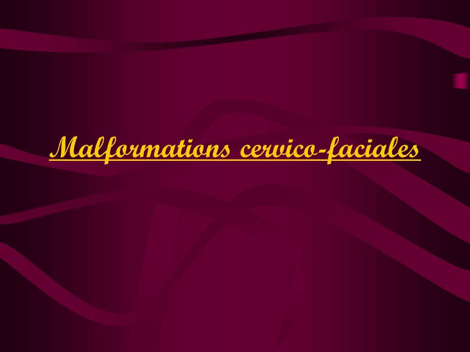 Malformations cervico-faciales