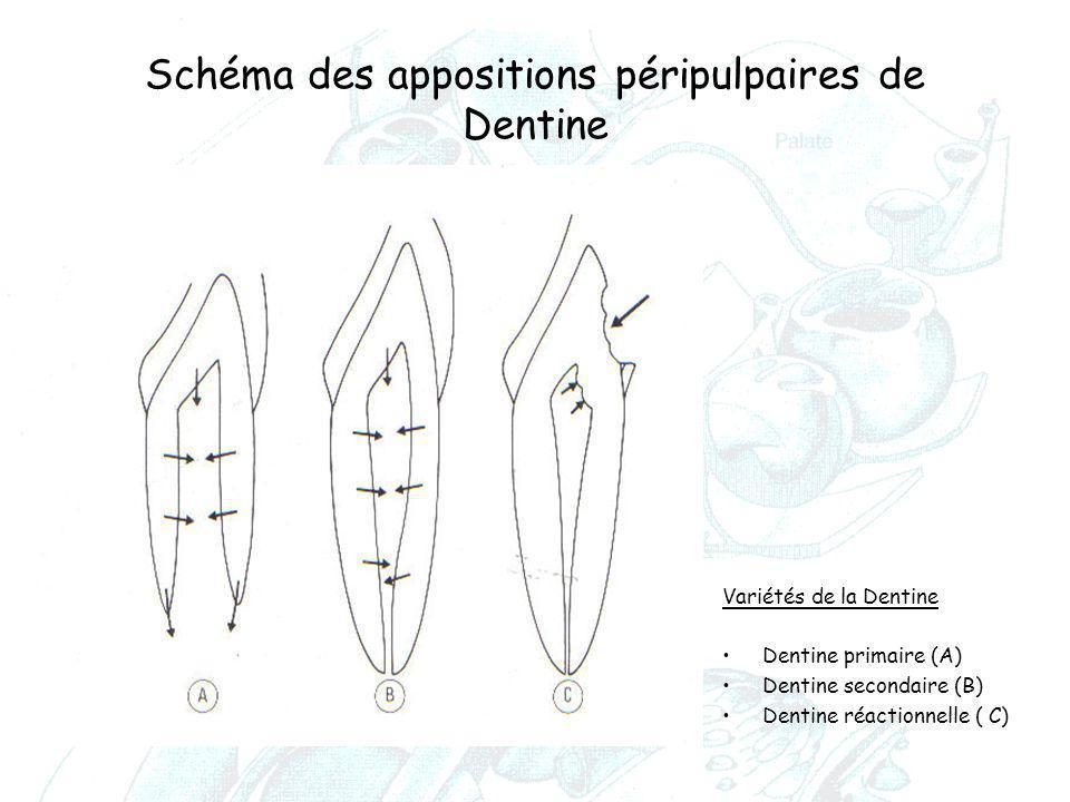 Schéma des appositions péripulpaires de Dentine Variétés de la Dentine Dentine primaire (A) Dentine secondaire (B) Dentine réactionnelle ( C)