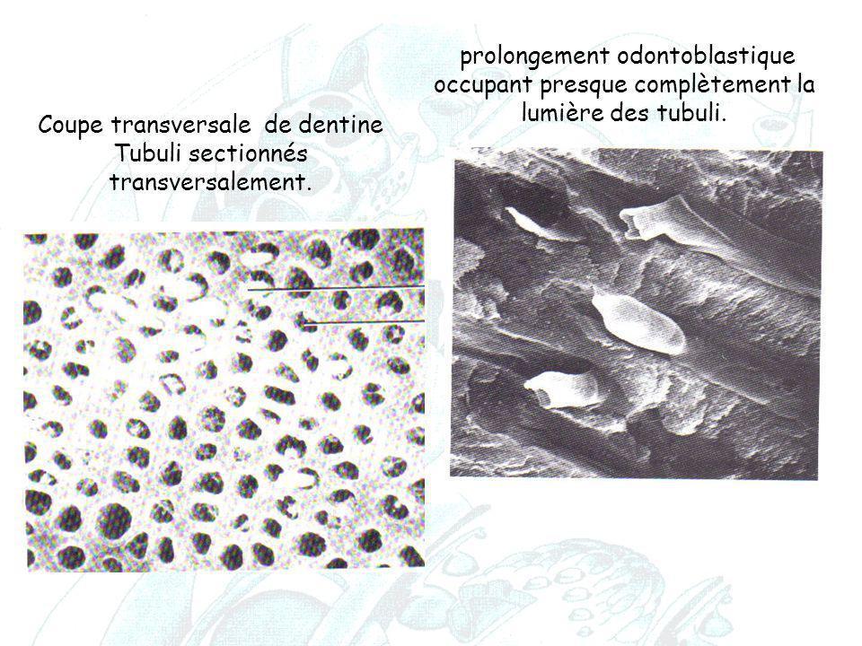 Coupe transversale de dentine Tubuli sectionnés transversalement. prolongement odontoblastique occupant presque complètement la lumière des tubuli.