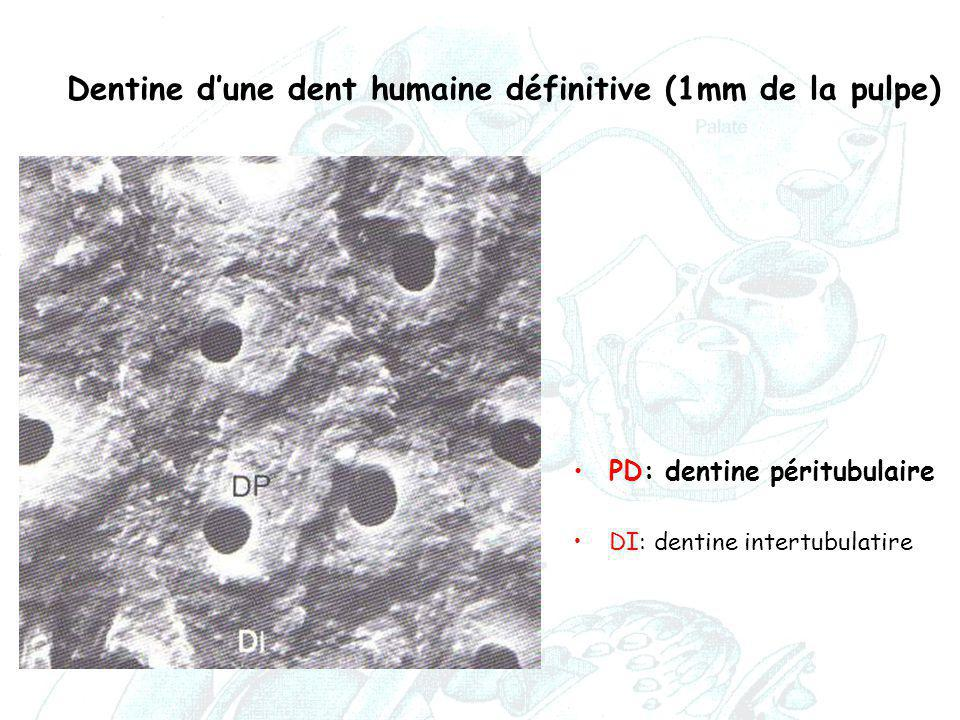Dentine d'une dent humaine définitive (1mm de la pulpe) PD: dentine péritubulaire DI: dentine intertubulatire