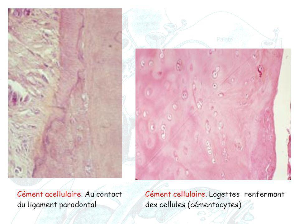 Cément acellulaire. Au contact Cément cellulaire. Logettes renfermant du ligament parodontal des cellules (cémentocytes)