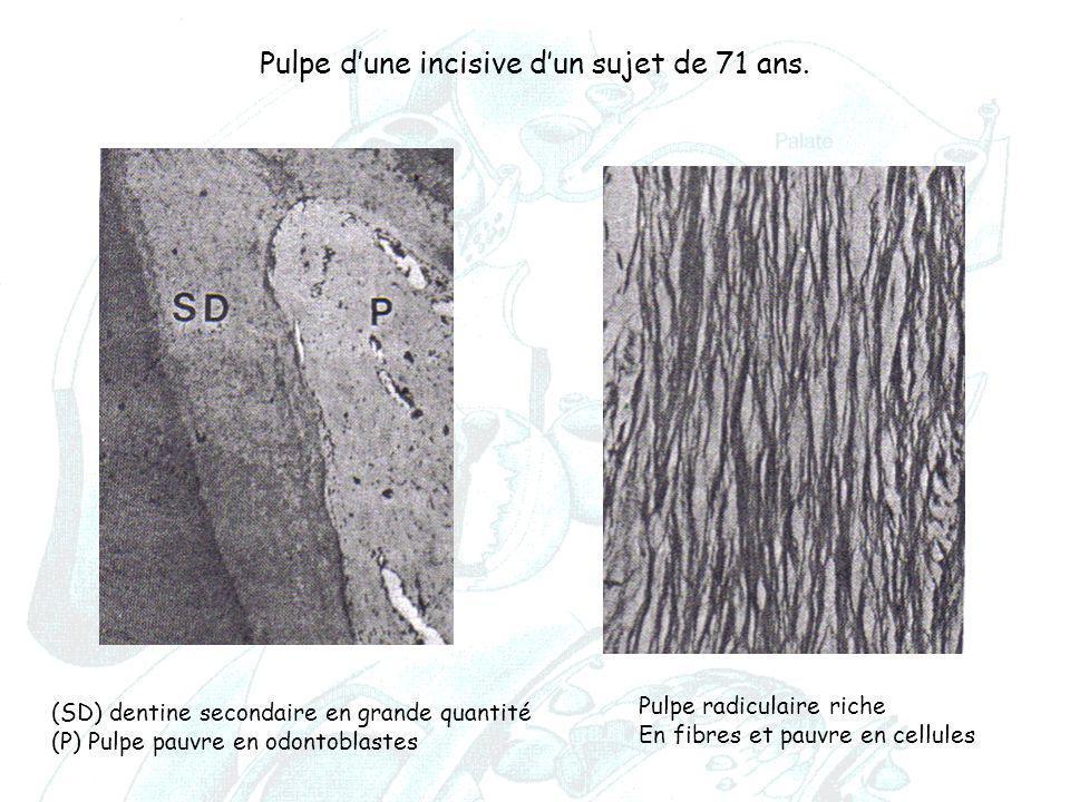 Pulpe d'une incisive d'un sujet de 71 ans. (SD) dentine secondaire en grande quantité (P) Pulpe pauvre en odontoblastes Pulpe radiculaire riche En fib
