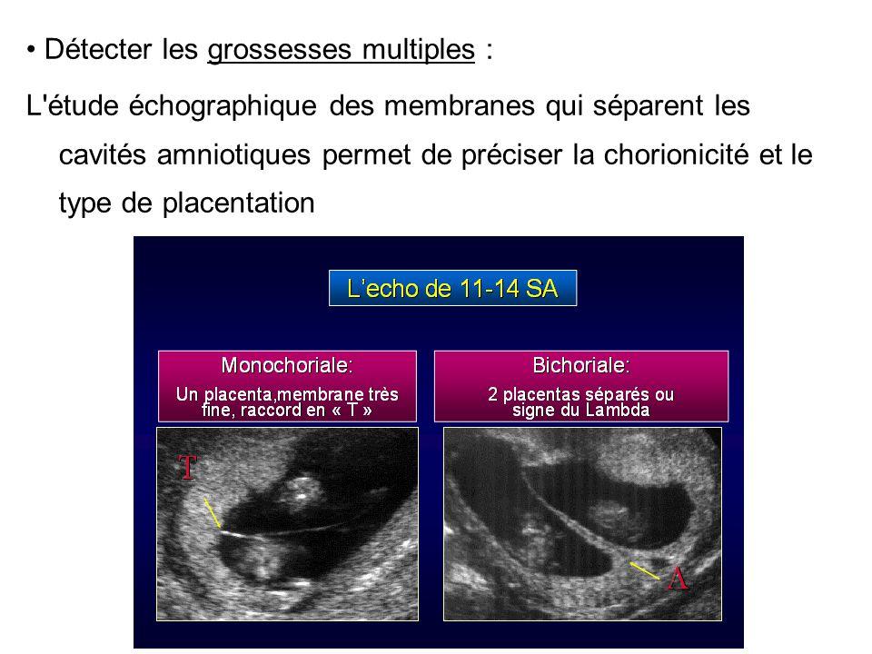 Détecter les grossesses multiples : L'étude échographique des membranes qui séparent les cavités amniotiques permet de préciser la chorionicité et le