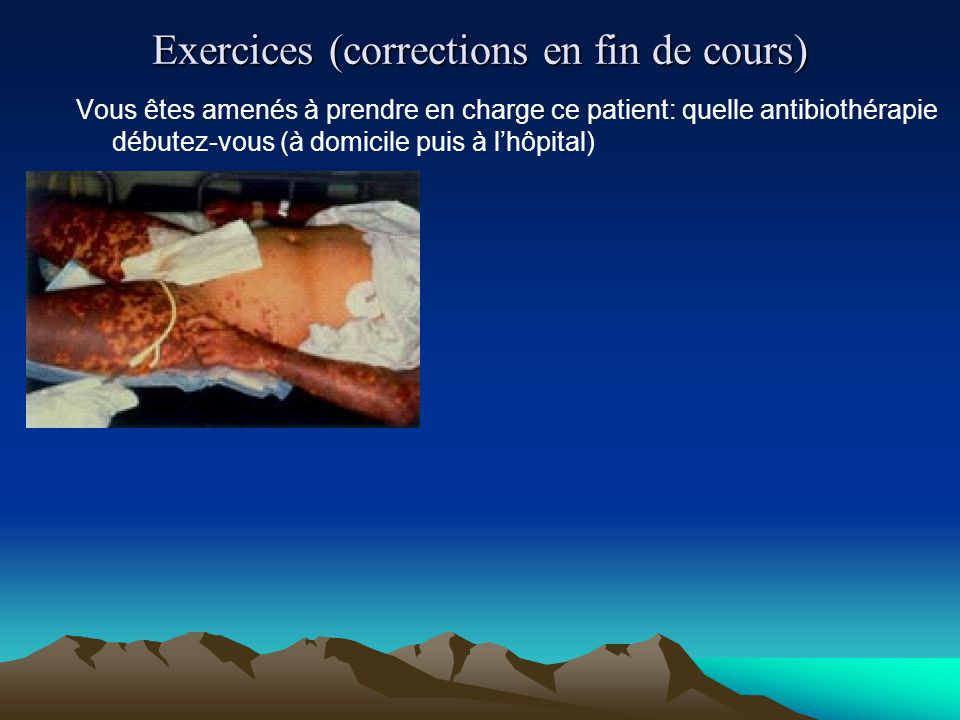 Exercices (corrections en fin de cours) Vous êtes amenés à prendre en charge ce patient: quelle antibiothérapie débutez-vous (à domicile puis à l'hôpi