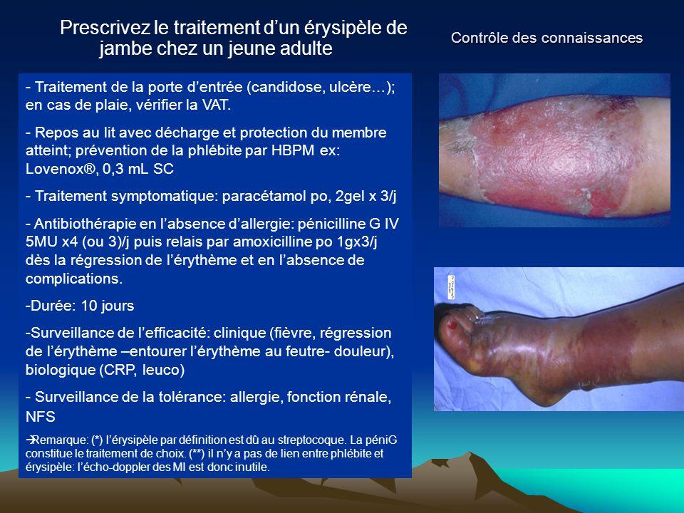 Contrôle des connaissances Prescrivez le traitement d'un érysipèle de jambe chez un jeune adulte - Traitement de la porte d'entrée (candidose, ulcère…