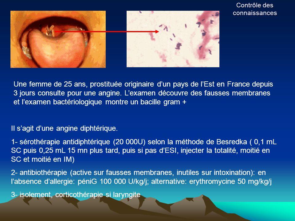 Contrôle des connaissances Une femme de 25 ans, prostituée originaire d'un pays de l'Est en France depuis 3 jours consulte pour une angine. L'examen d