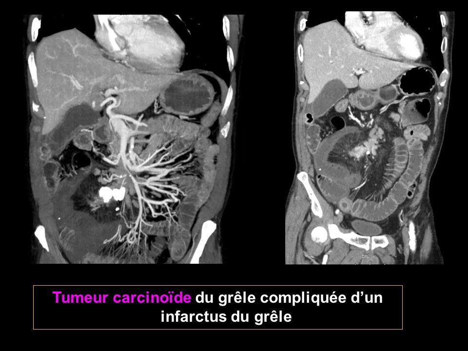 Tumeur carcinoïde du grêle compliquée d'un infarctus du grêle