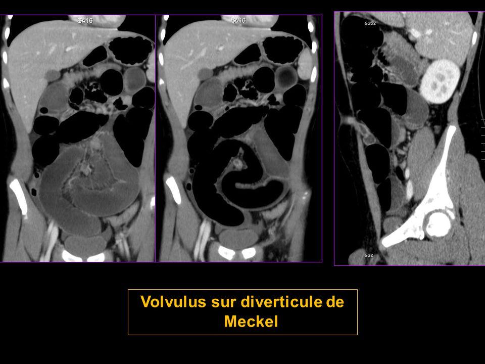 Volvulus sur diverticule de Meckel