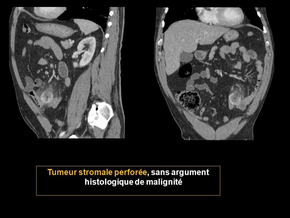 Tumeur stromale perforée, sans argument histologique de malignité