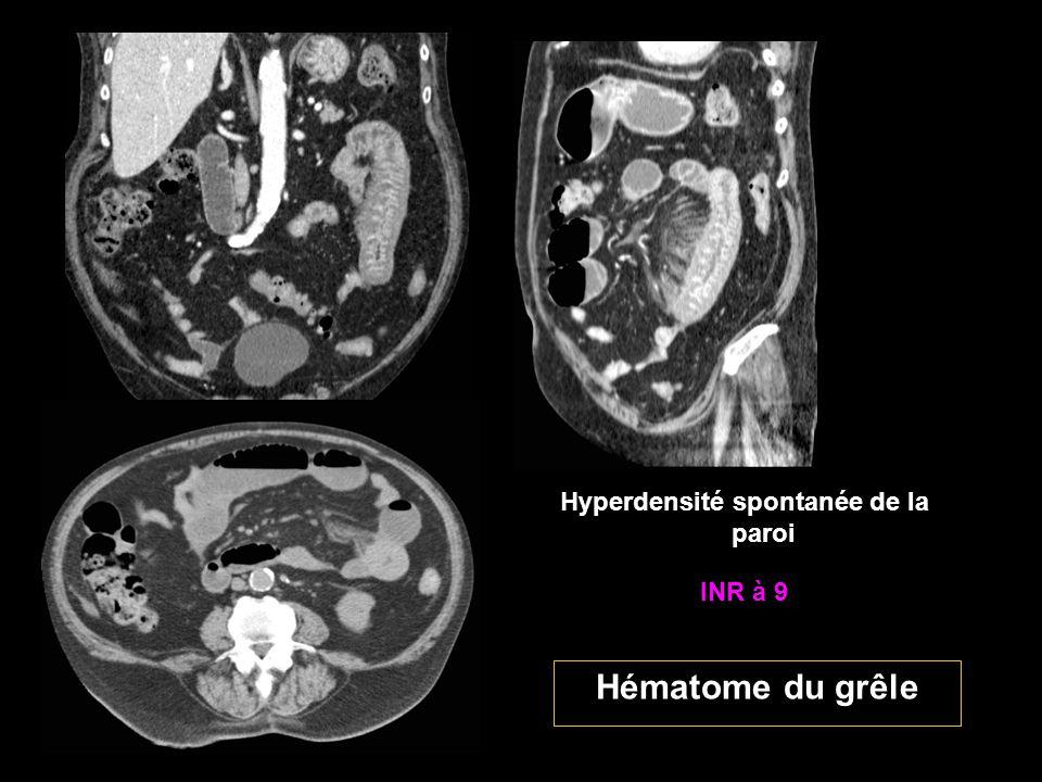 INR à 9 Hématome du grêle Hyperdensité spontanée de la paroi