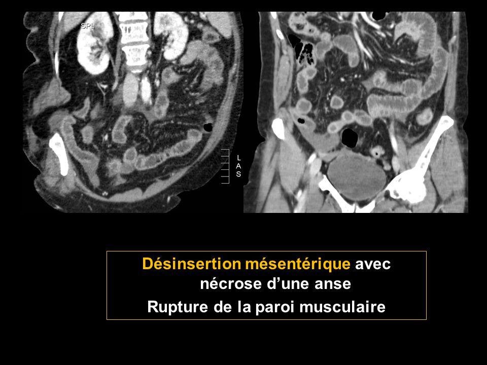 Désinsertion mésentérique avec nécrose d'une anse Rupture de la paroi musculaire