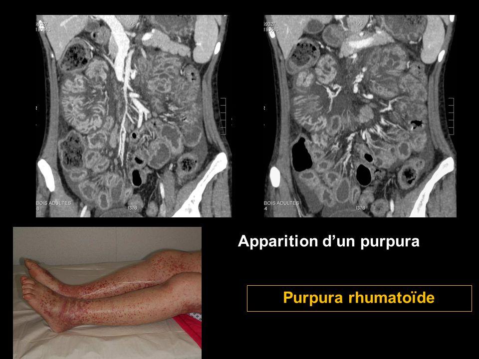 Apparition d'un purpura Purpura rhumatoïde