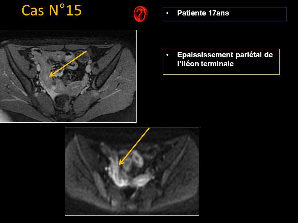 Patiente 17ans Cas N°15 Epaississement pariétal de l'iléon terminale