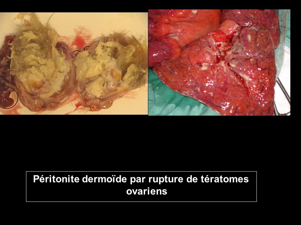 Péritonite dermoïde par rupture de tératomes ovariens