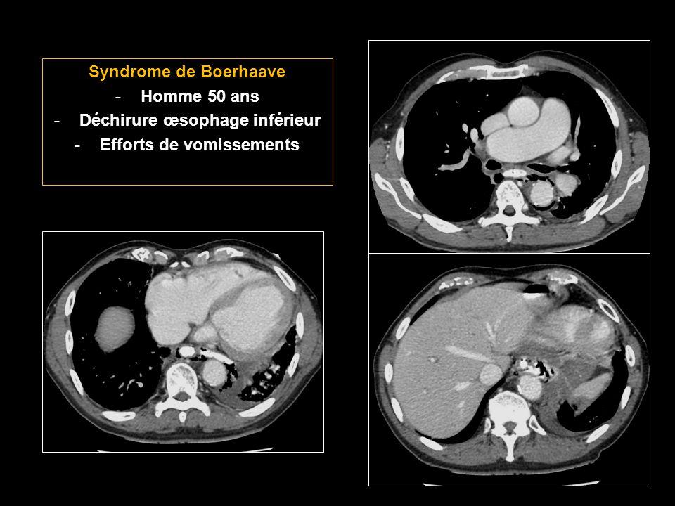 Syndrome de Boerhaave -Homme 50 ans -Déchirure œsophage inférieur -Efforts de vomissements
