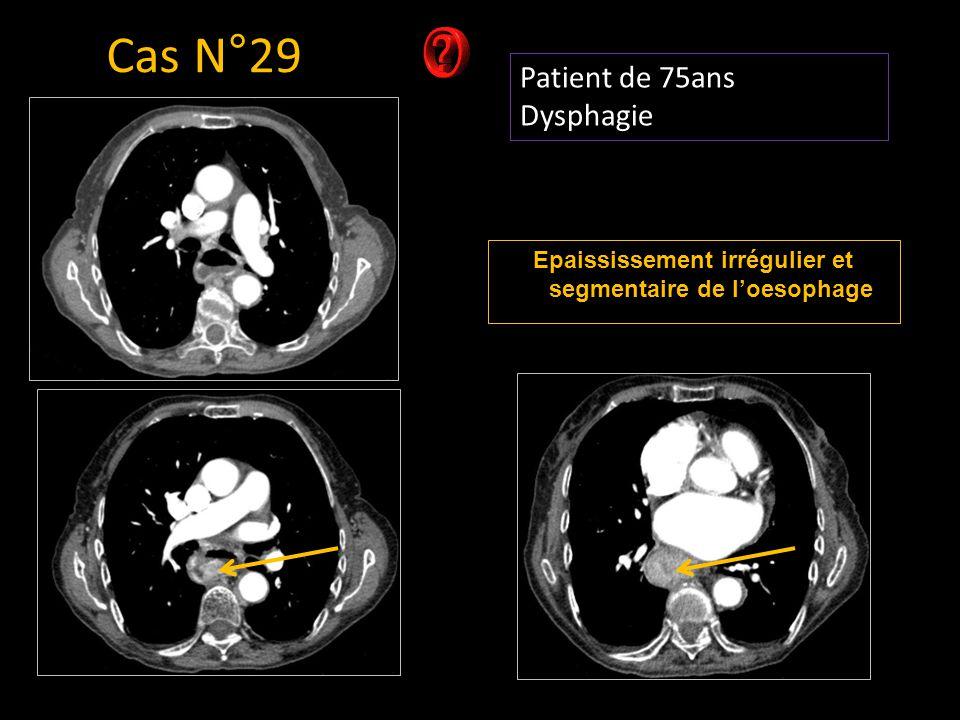 Patient de 75ans Dysphagie Cas N°29 Epaississement irrégulier et segmentaire de l'oesophage