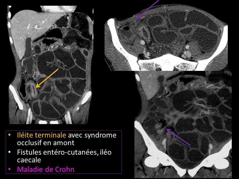 Iléite terminale avec syndrome occlusif en amont Fistules entéro-cutanées, iléo caecale Maladie de Crohn