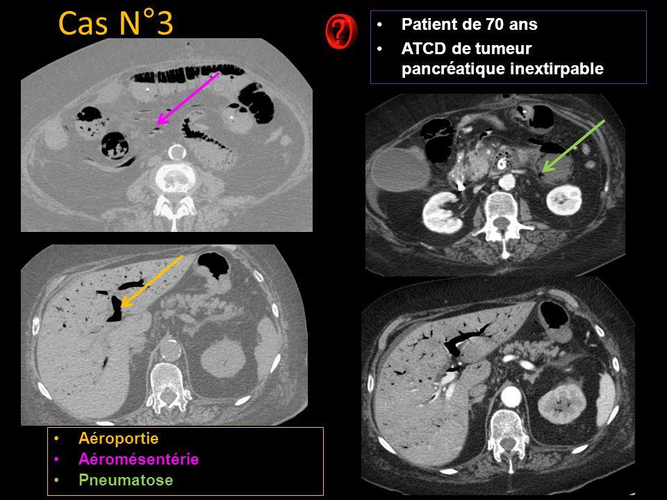 Patient de 70 ans ATCD de tumeur pancréatique inextirpable Cas N°3 Aéroportie Aéromésentérie Pneumatose