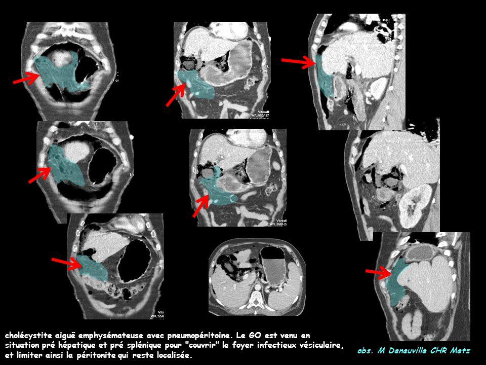 cholécystite aiguë emphysémateuse avec pneumopéritoine. Le GO est venu en situation pré hépatique et pré splénique pour