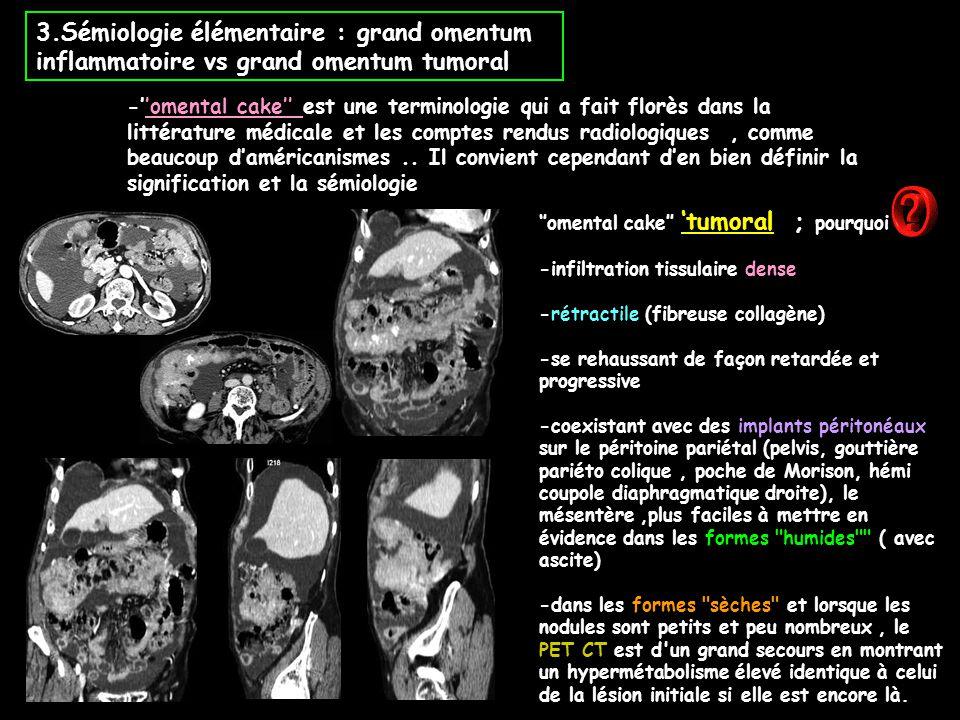 3.Sémiologie élémentaire : grand omentum inflammatoire vs grand omentum tumoral -''omental cake'' est une terminologie qui a fait florès dans la litté