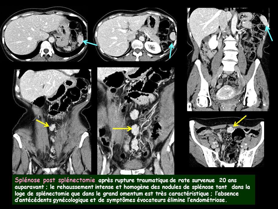 Splénose post splénectomie après rupture traumatique de rate survenue 20 ans auparavant ; le rehaussement intense et homogène des nodules de splénose