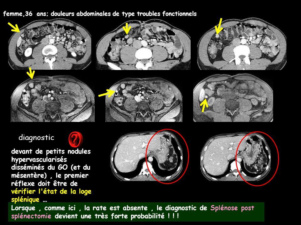 diagnostic femme,36 ans; douleurs abdominales de type troubles fonctionnels Lorsque, comme ici, la rate est absente, le diagnostic de Splénose post sp
