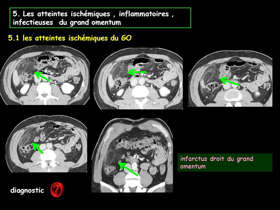 5. Les atteintes ischémiques, inflammatoires, infectieuses du grand omentum diagnostic infarctus droit du grand omentum 5.1 les atteintes ischémiques