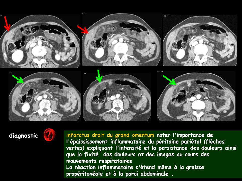 diagnostic infarctus droit du grand omentum noter l'importance de l'épaississement inflammatoire du péritoine pariétal (flèches vertes) expliquant l'i