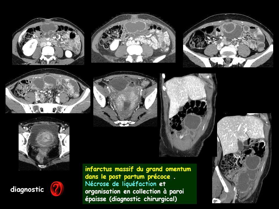 diagnostic infarctus massif du grand omentum dans le post partum précoce. Nécrose de liquéfaction et organisation en collection à paroi épaisse (diagn