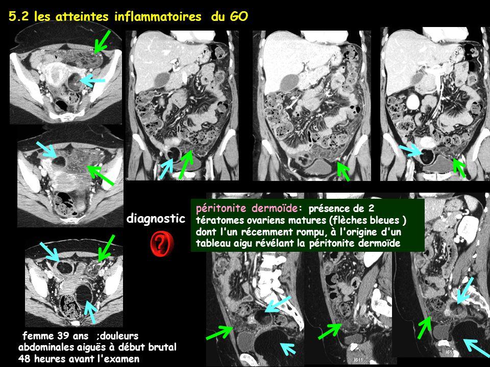péritonite dermoïde: présence de 2 tératomes ovariens matures (flèches bleues ) dont l'un récemment rompu, à l'origine d'un tableau aigu révélant la p