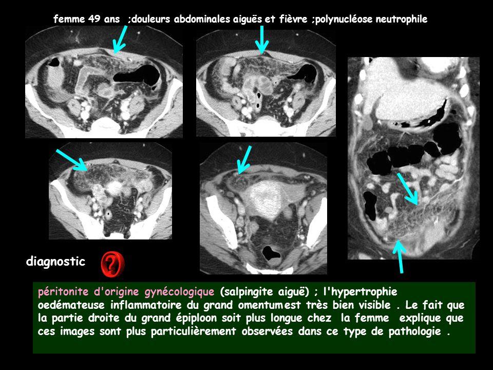diagnostic péritonite d'origine gynécologique (salpingite aiguë) ; l'hypertrophie oedémateuse inflammatoire du grand omentumest très bien visible. Le