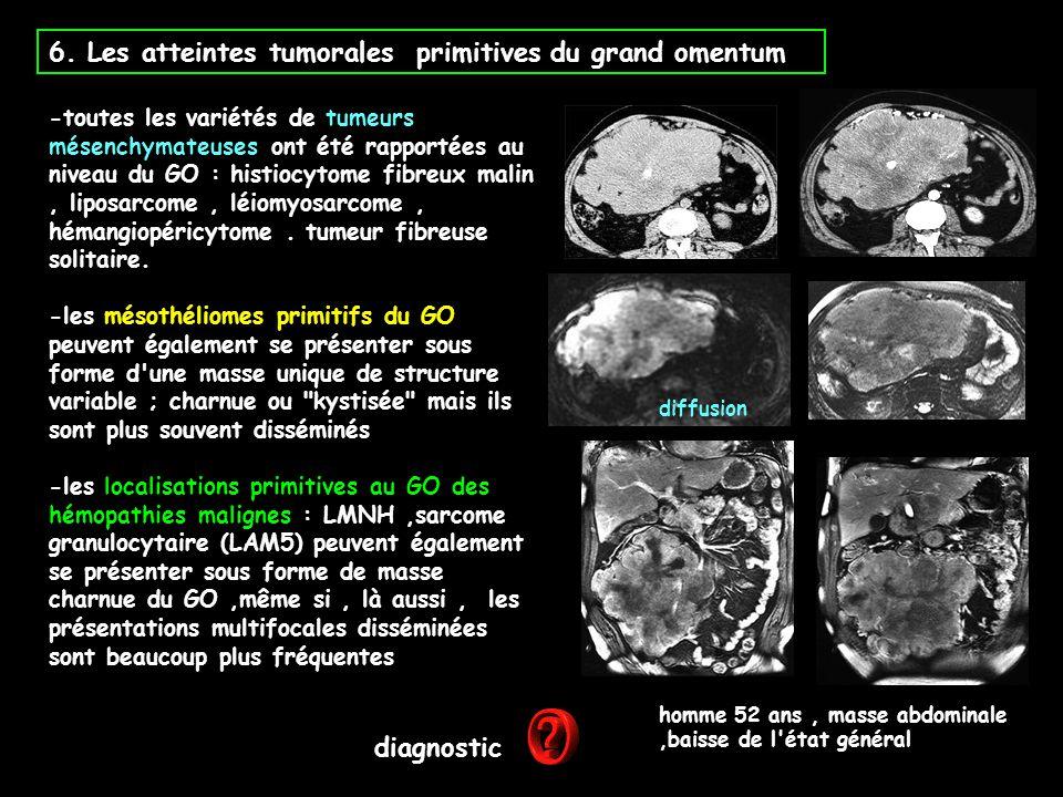 6. Les atteintes tumorales primitives du grand omentum -toutes les variétés de tumeurs mésenchymateuses ont été rapportées au niveau du GO : histiocyt