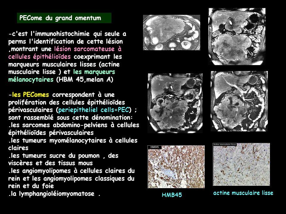 -c'est l'immunohistochimie qui seule a perms l'identification de cette lésion,montrant une lésion sarcomateuse à cellules épithélioïdes coexprimant le