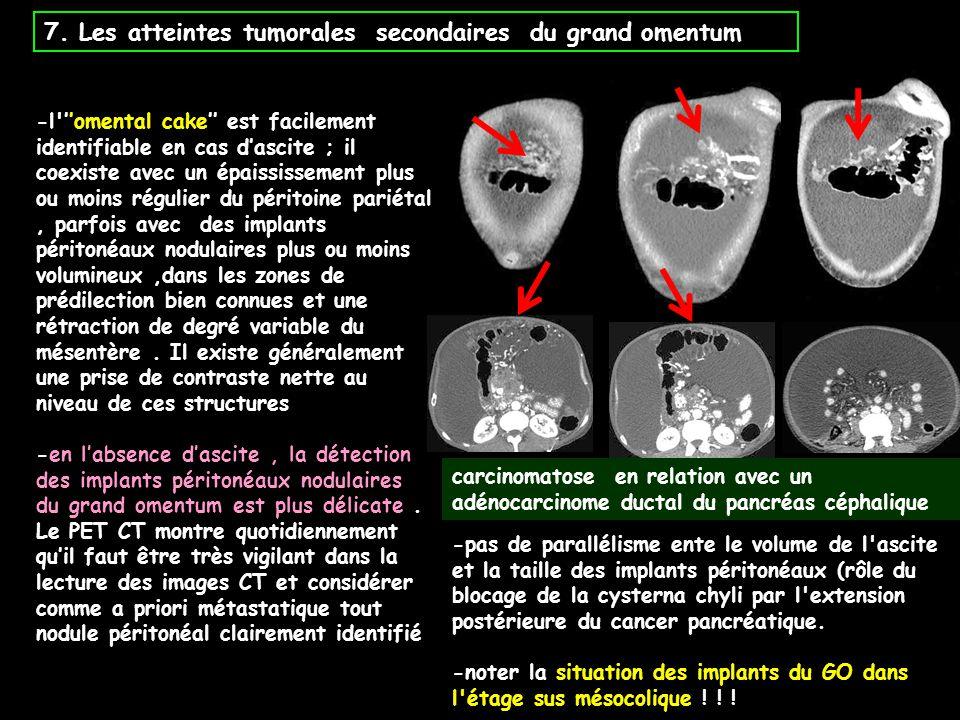 7. Les atteintes tumorales secondaires du grand omentum -l'''omental cake'' est facilement identifiable en cas d'ascite ; il coexiste avec un épaissis