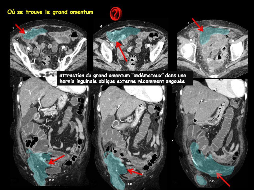 Où se trouve le grand omentum attraction du grand omentum ''œdémateux'' dans une hernie inguinale oblique externe récemment engouée