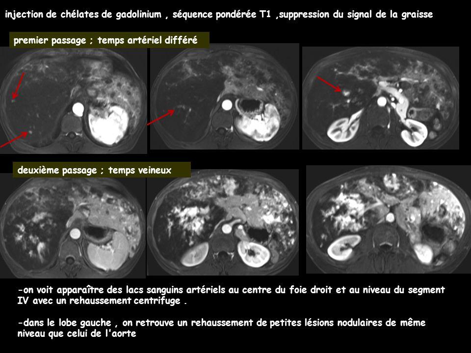 injection de chélates de gadolinium, séquence pondérée T1,suppression du signal de la graisse premier passage ; temps artériel différé deuxième passage ; temps veineux -on voit apparaître des lacs sanguins artériels au centre du foie droit et au niveau du segment IV avec un rehaussement centrifuge.