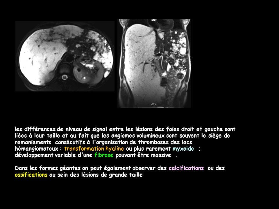 les différences de niveau de signal entre les lésions des foies droit et gauche sont liées à leur taille et au fait que les angiomes volumineux sont souvent le siège de remaniements consécutifs à l organisation de thromboses des lacs hémangiomateux : transformation hyaline ou plus rarement myxoïde ; développement variable d une fibrose pouvant être massive.
