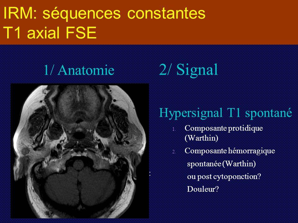 IRM: séquences constantes T1 axial FSE 2/ Signal Hypersignal T1 spontané 1. 1. Composante protidique (Warthin) 2. 2. Composante hémorragique spontanée