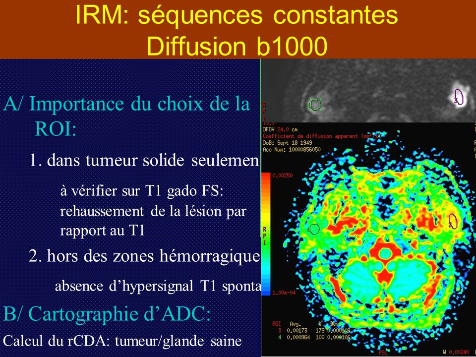 IRM: séquences constantes Diffusion b1000 A/ Importance du choix de la ROI: 1. dans tumeur solide seulement: à vérifier sur T1 gado FS: rehaussement d