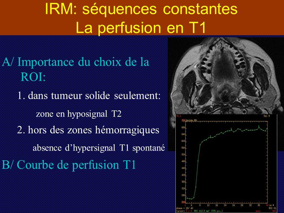 IRM: séquences constantes La perfusion en T1 A/ Importance du choix de la ROI: 1. dans tumeur solide seulement: zone en hyposignal T2 2. hors des zone