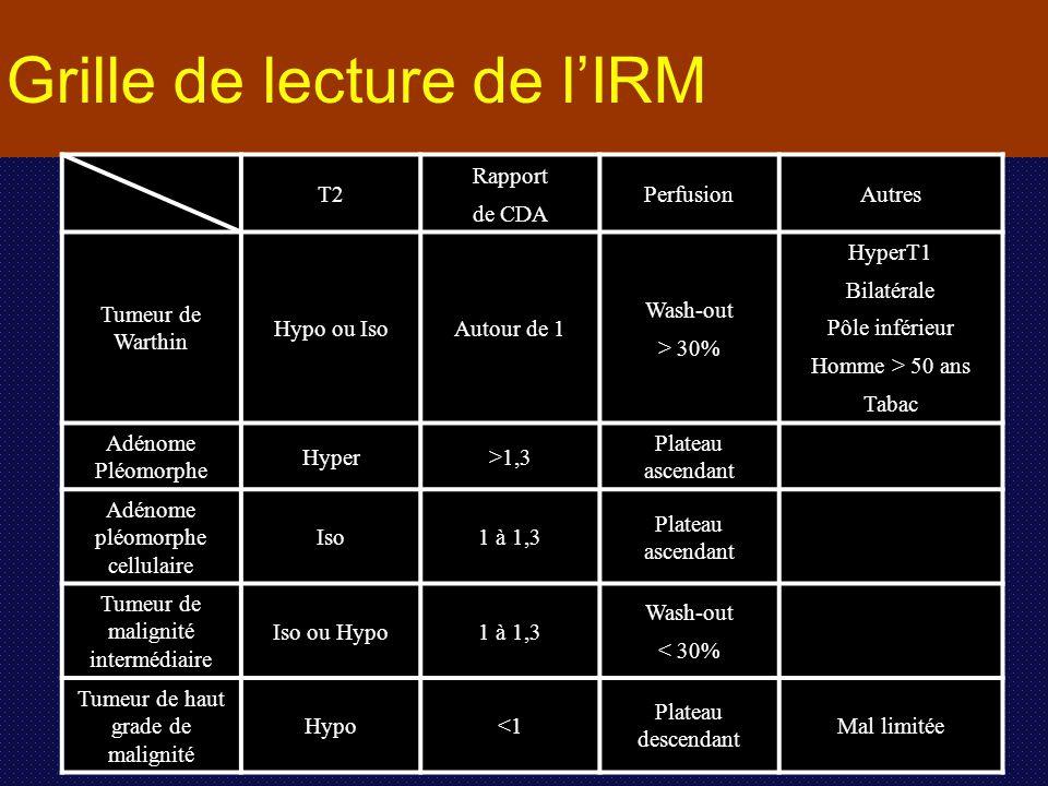 T2 Rapport de CDA PerfusionAutres Tumeur de Warthin Hypo ou IsoAutour de 1 Wash-out > 30% HyperT1 Bilatérale Pôle inférieur Homme > 50 ans Tabac Adéno