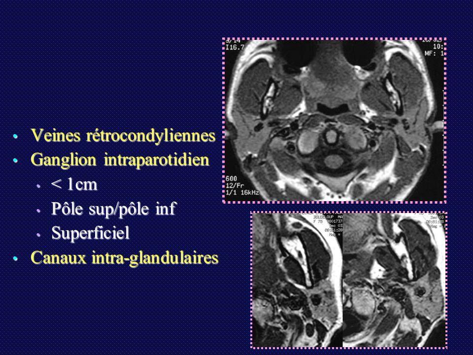 Conclusions L'IRM est au premier plan: L'IRM est au premier plan: Bilan topographique loco-régional Bilan topographique loco-régional Caractérisation dans 80% des cas: AP, AL, tumeur maligne Caractérisation dans 80% des cas: AP, AL, tumeur maligne CAD si tumeurs solides pour caractériser t.malignes d'apparence bénignes (-----> cytoponction) CAD si tumeurs solides pour caractériser t.malignes d'apparence bénignes (-----> cytoponction) Résultats de l'IRM comparables à la cytoponction Résultats de l'IRM comparables à la cytoponction Grâce à l'IRM, la parotidectomie totale de principe est remise en cause +++ (abstention et surveillance, geste limité dans les AL; dgc de kyste épidermoïde) Grâce à l'IRM, la parotidectomie totale de principe est remise en cause +++ (abstention et surveillance, geste limité dans les AL; dgc de kyste épidermoïde) Suivi IRM systématique après chirurgie (AP +++) Suivi IRM systématique après chirurgie (AP +++)
